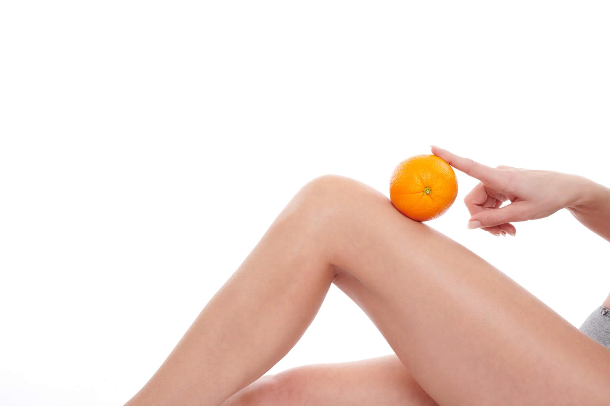 Cellulite Treatment Peachtree City